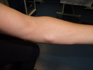 lipoma removal arm before