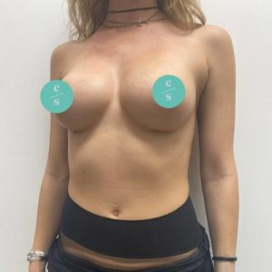 round implant breast augmentation after