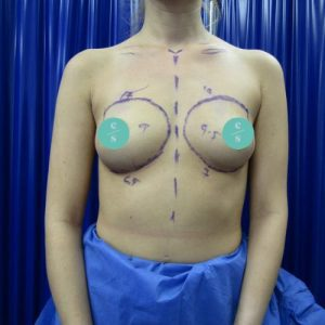 round implant breast augmentation before