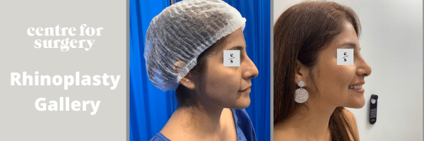 rhinoplasty & nose job gallery