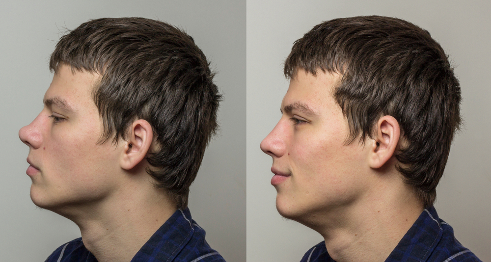 saddle nose rhinoplasty