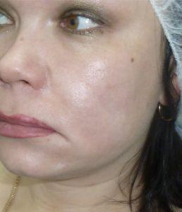 facial scar revision after