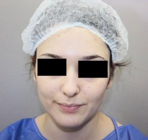 preservation rhinoplasty before frontal view