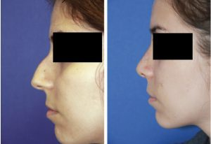 dorsal hump removal rhinoplasty before and after