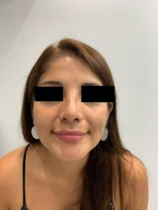 preservation rhinoplasty after frontal view