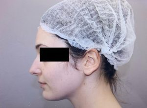 preservation rhinoplasty before side view