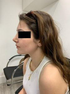 preservation rhinoplasty after side view