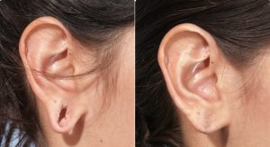 tribal earlobe repair before and after