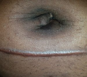 umbilicoplasty belly button surgery after