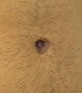 umbilicoplasty surgery after