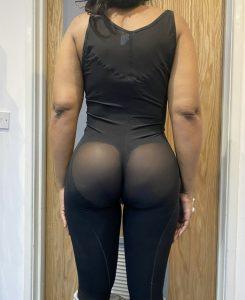 brazilian butt lift after london