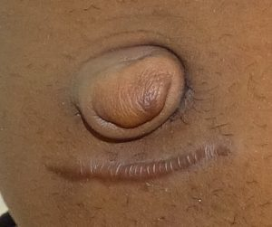 umbilicoplasty belly button surgery before