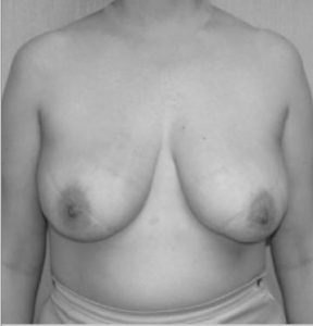 liposuction breast reduction after