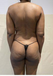 brazilian butt lift before london