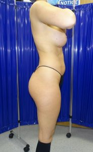 brazilian butt lift before side view