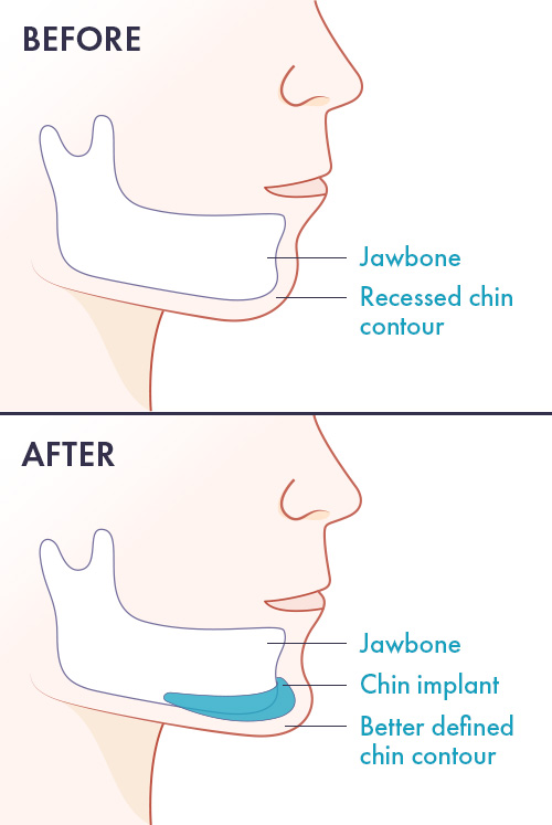 chin augmentation with chin implants diagram