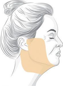 facelift explainer diagram