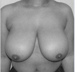 liposuction breast reduction before