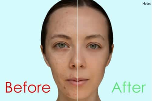 chemical peels acne scarring