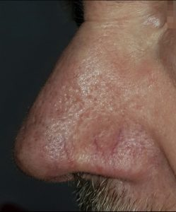 facial thread vein removal before