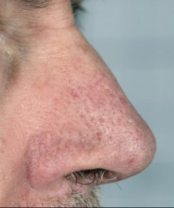 facial thread vein removal london after