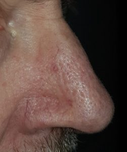 facial thread vein removal london before