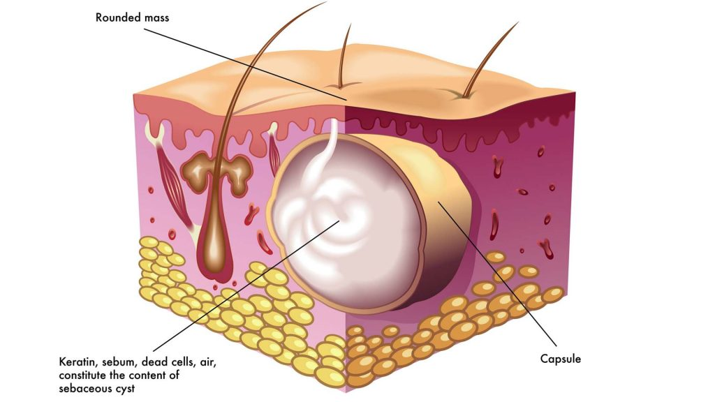 cyst removal diagram