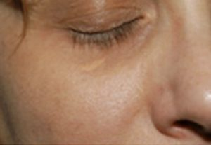 xanthelasma removal lower eyelid before