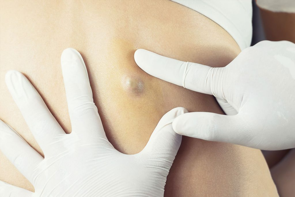 cyst removal london