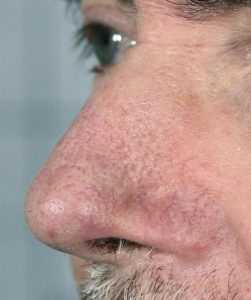 facial thread vein removal after