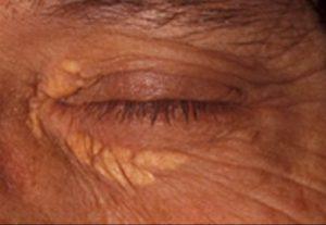 xanthelasma removal inner eye before