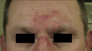 rosacea forehead and nose before