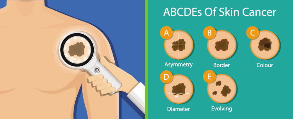 ABCDE of skin cancer