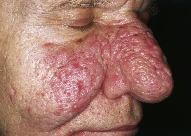 rhinophyma of nose