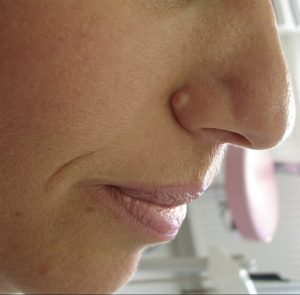 laser mole removal before