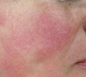 rosacea cheeks after