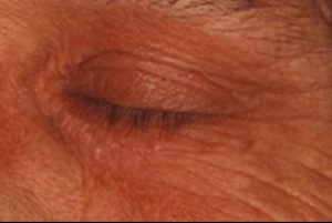 xanthelasma removal inner eye after