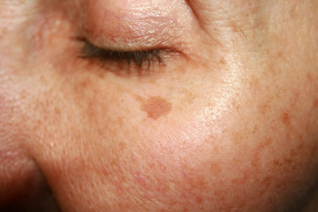 age spot removal london