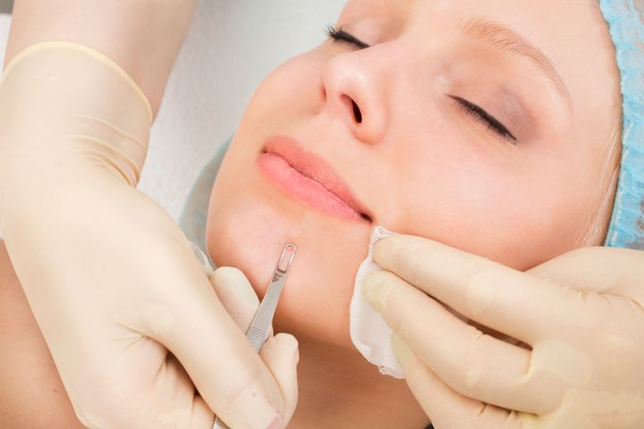 comedone acne extraction