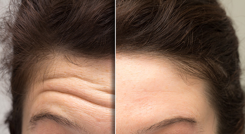 horizontal forehead lines Anti Wrinkle Injections