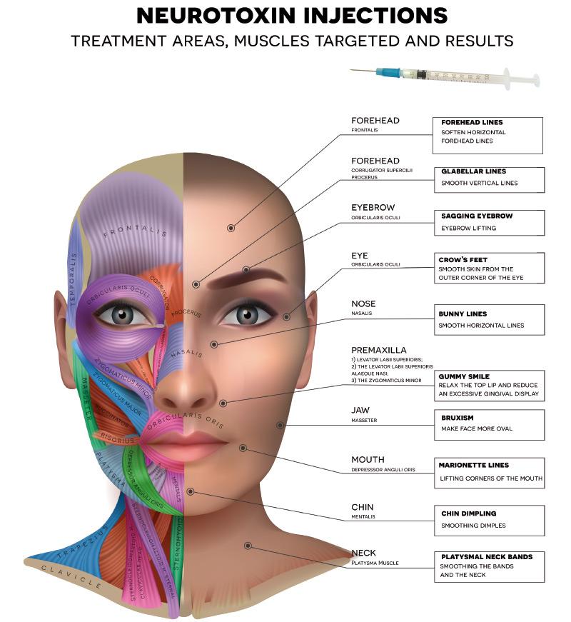 neurotoxin injection areas