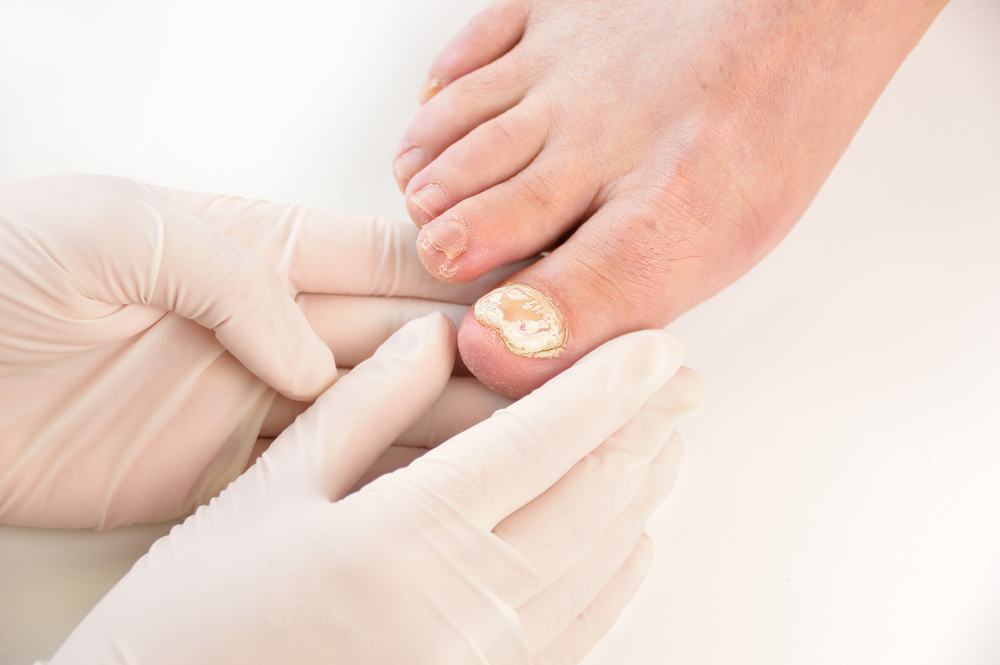 fungal nail infection treatment london