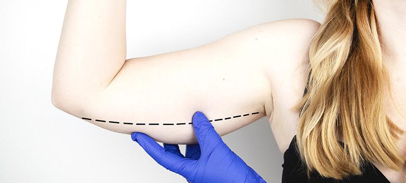 arm lift brachioplasty london