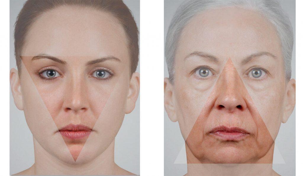 facial ageing facelift