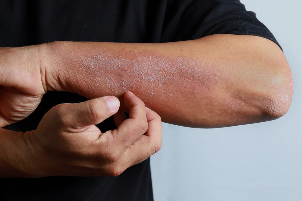 dermatitis treatment london