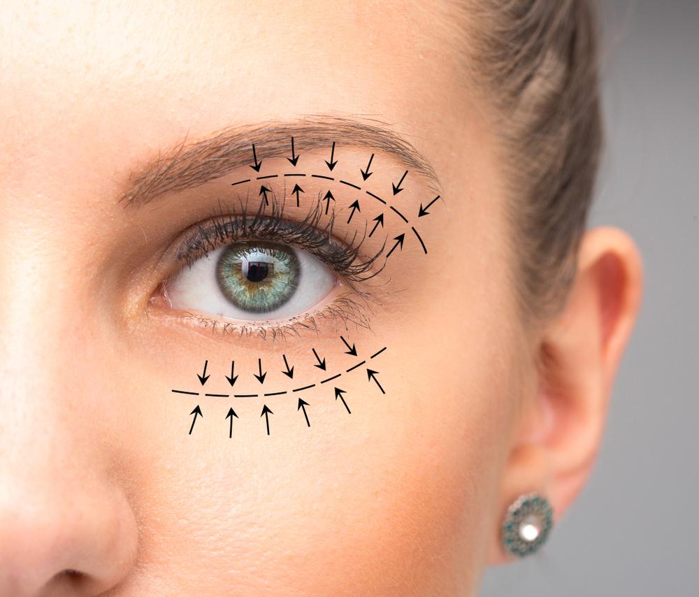 blepharoplasty eyelid surgery london