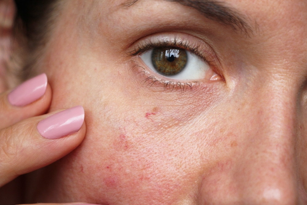 facial thread vein removal london