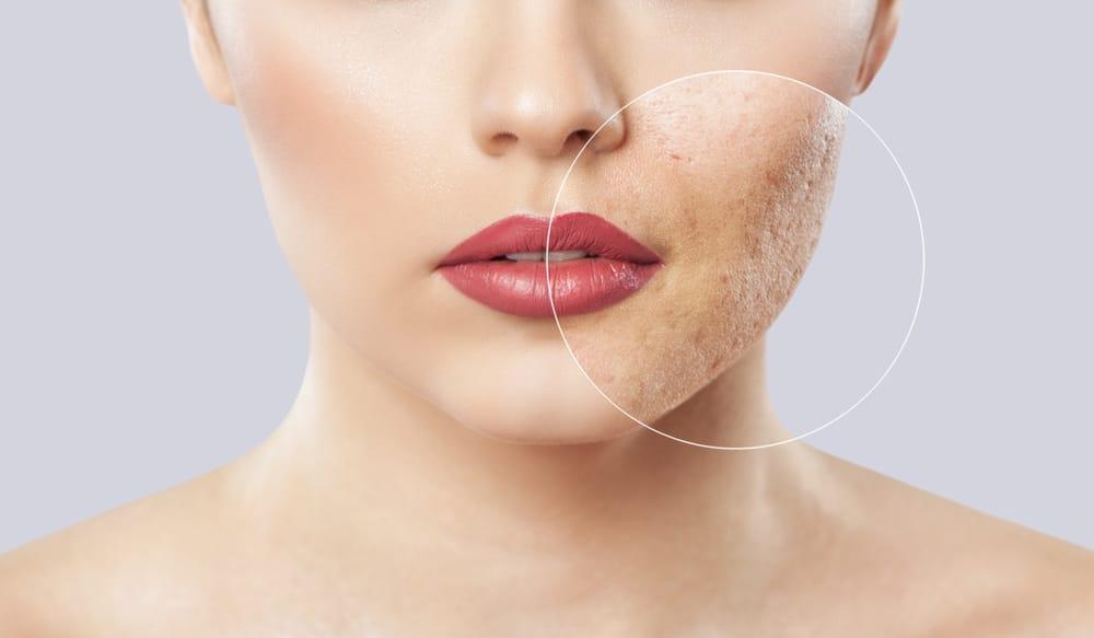 acne scar removal london