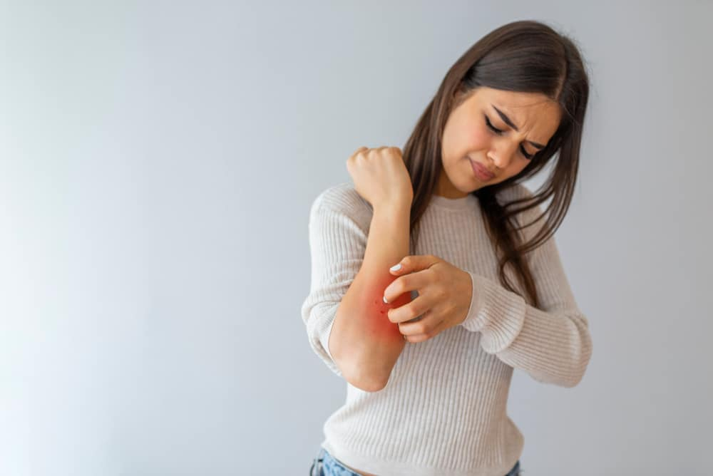 eczema treatment London