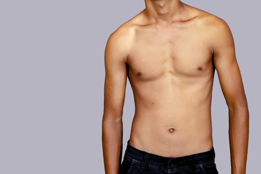 pectus implants poland syndrome implants London